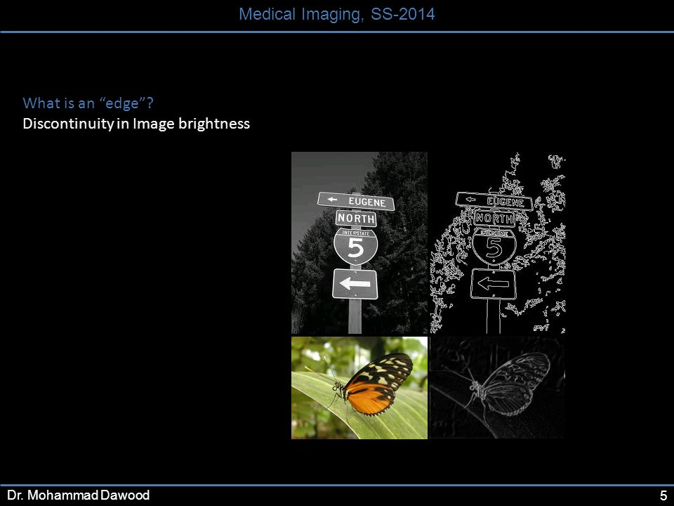 5 Medical Imaging, SS-2014 Dr. Mohammad Dawood What is an edge ? Discontinuity in Image brightness