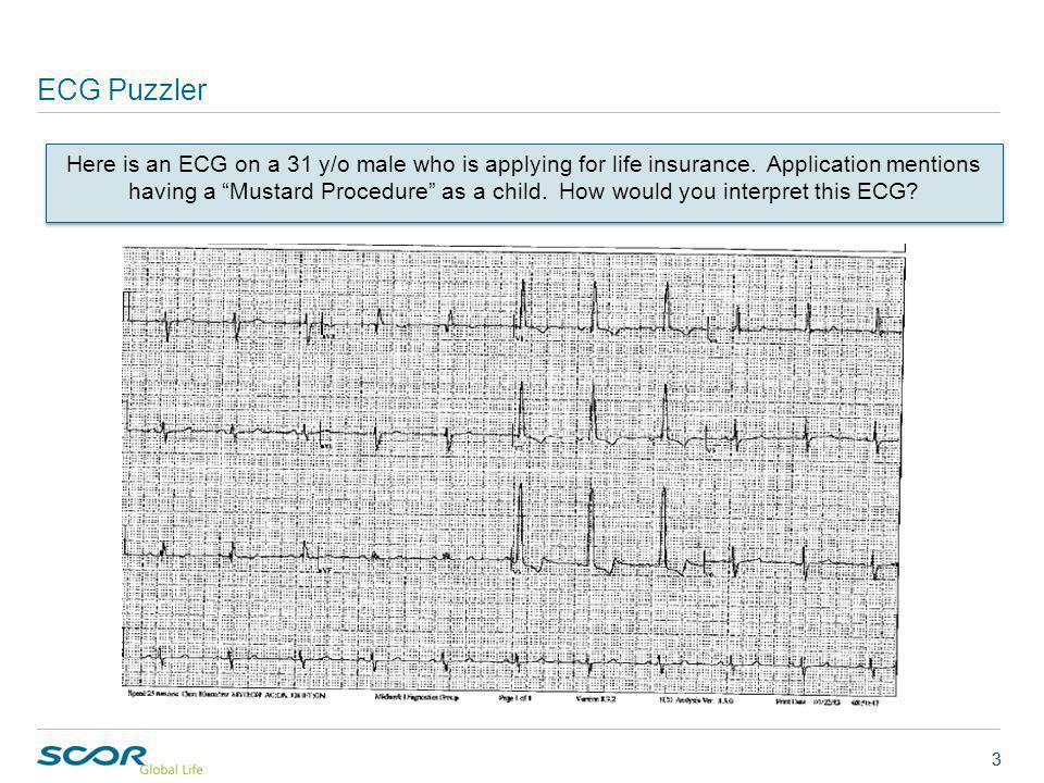 ECG Puzzler 3 Here is an ECG on a 31 y/o male who is applying for life insurance.