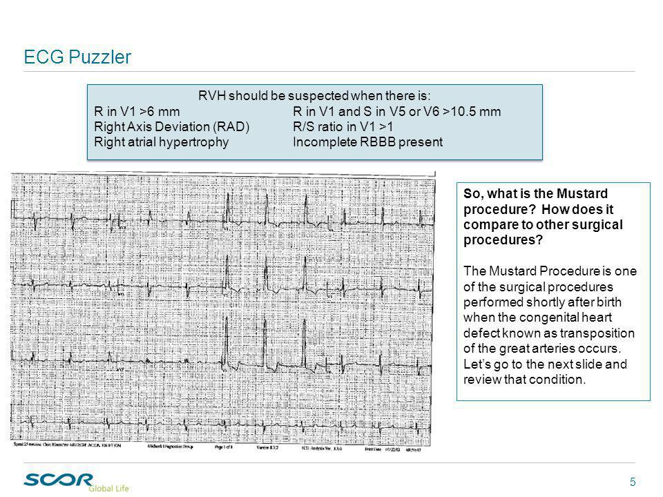 ECG Puzzler 5 RVH should be suspected when there is: R in V1 >6 mmR in V1 and S in V5 or V6 >10.5 mm Right Axis Deviation (RAD)R/S ratio in V1 >1 Right atrial hypertrophyIncomplete RBBB present RVH should be suspected when there is: R in V1 >6 mmR in V1 and S in V5 or V6 >10.5 mm Right Axis Deviation (RAD)R/S ratio in V1 >1 Right atrial hypertrophyIncomplete RBBB present So, what is the Mustard procedure.