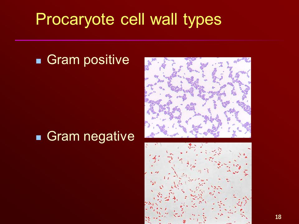 18 Procaryote cell wall types Gram positive Gram negative