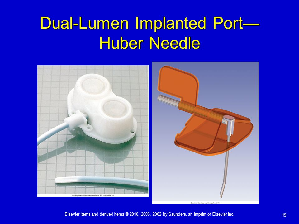 Elsevier items and derived items © 2010, 2006, 2002 by Saunders, an imprint of Elsevier Inc. 19 Dual-Lumen Implanted Port— Huber Needle