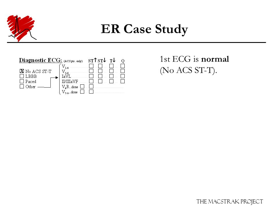 The Macstrak Project ER Case Study 1st ECG is normal (No ACS ST-T). X