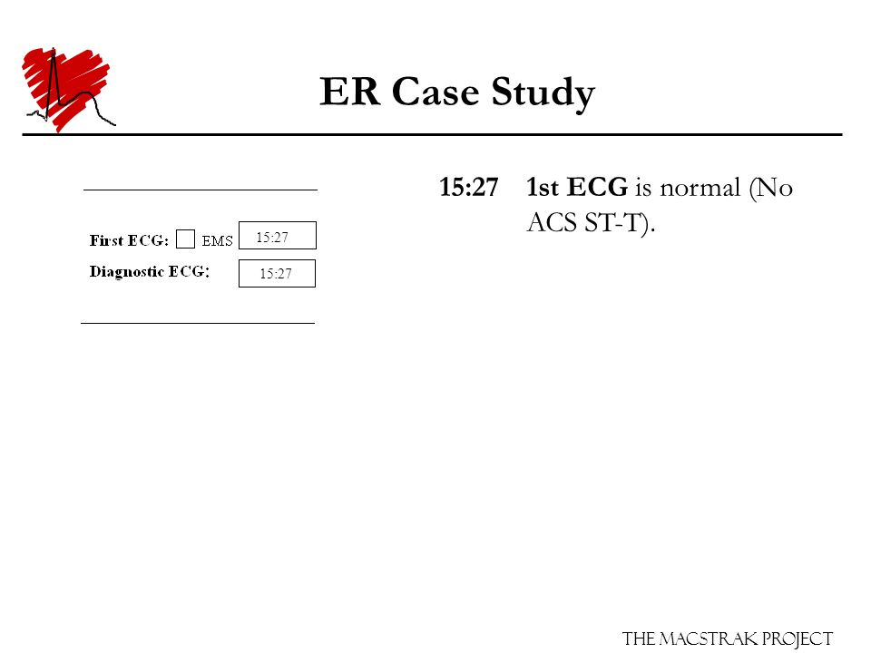 The Macstrak Project ER Case Study 15:271st ECG is normal (No ACS ST-T). 15:27