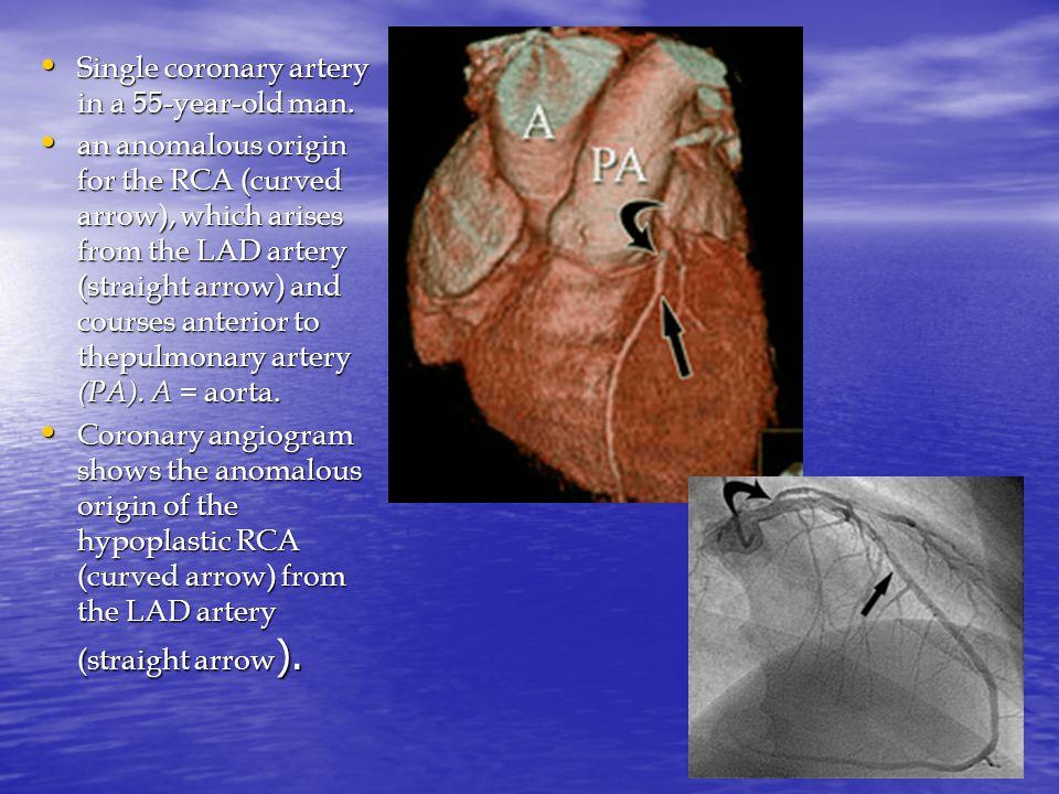 Single coronary artery in a 55-year-old man. Single coronary artery in a 55-year-old man.