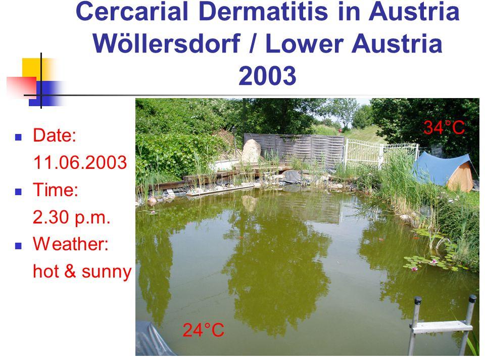 Cercarial Dermatitis in Austria Wöllersdorf / Lower Austria 2003 Date: 11.06.2003 Time: 2.30 p.m. Weather: hot & sunny 34°C 24°C