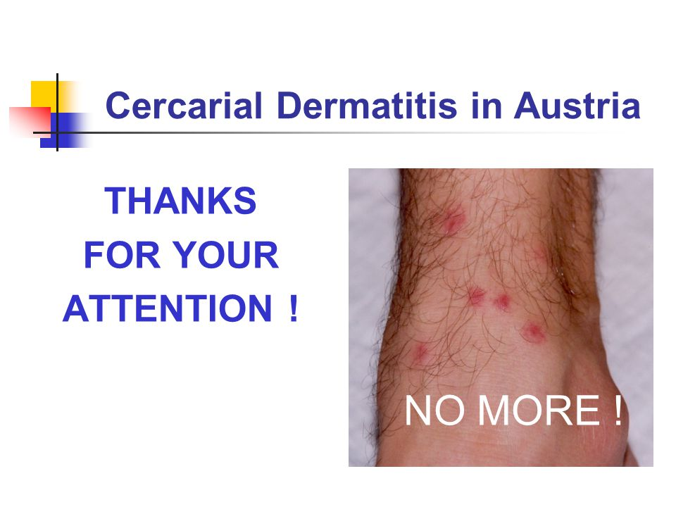 Cercarial Dermatitis in Austria THANKS FOR YOUR ATTENTION ! NO MORE !