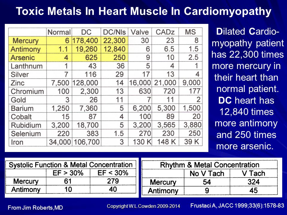 Toxic Metals In Heart Muscle In Cardiomyopathy From Jim Roberts,MD Dilated Cardio- myopathy patient has 22,300 times more mercury in their heart than