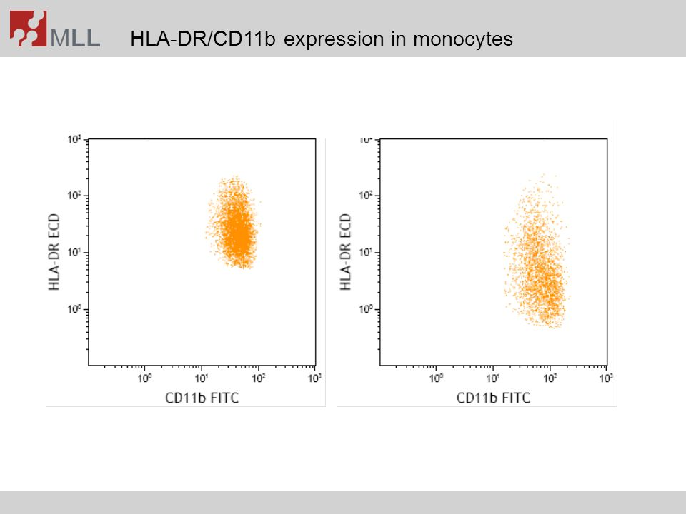 HLA-DR/CD11b expression in monocytes