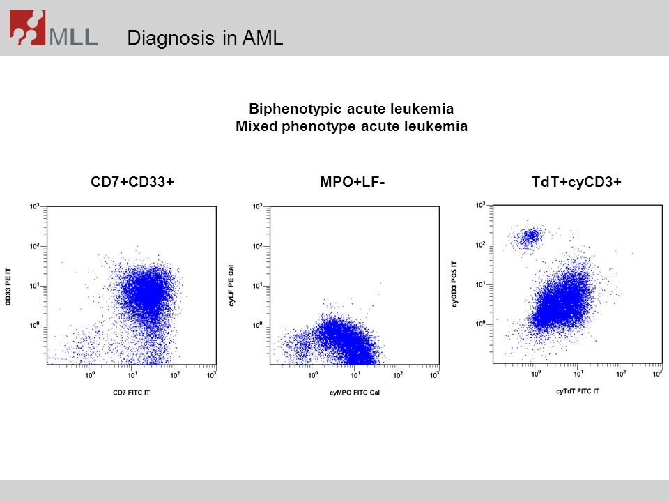 Diagnosis in AML CD7+CD33+MPO+LF-TdT+cyCD3+ Biphenotypic acute leukemia Mixed phenotype acute leukemia