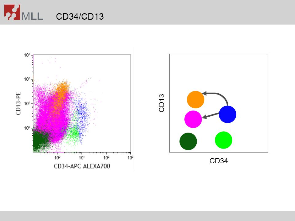 Subclassification in AML Typical findings in AML with inv(16): Coexpression of CD65 and CD34Coexpression of CD2