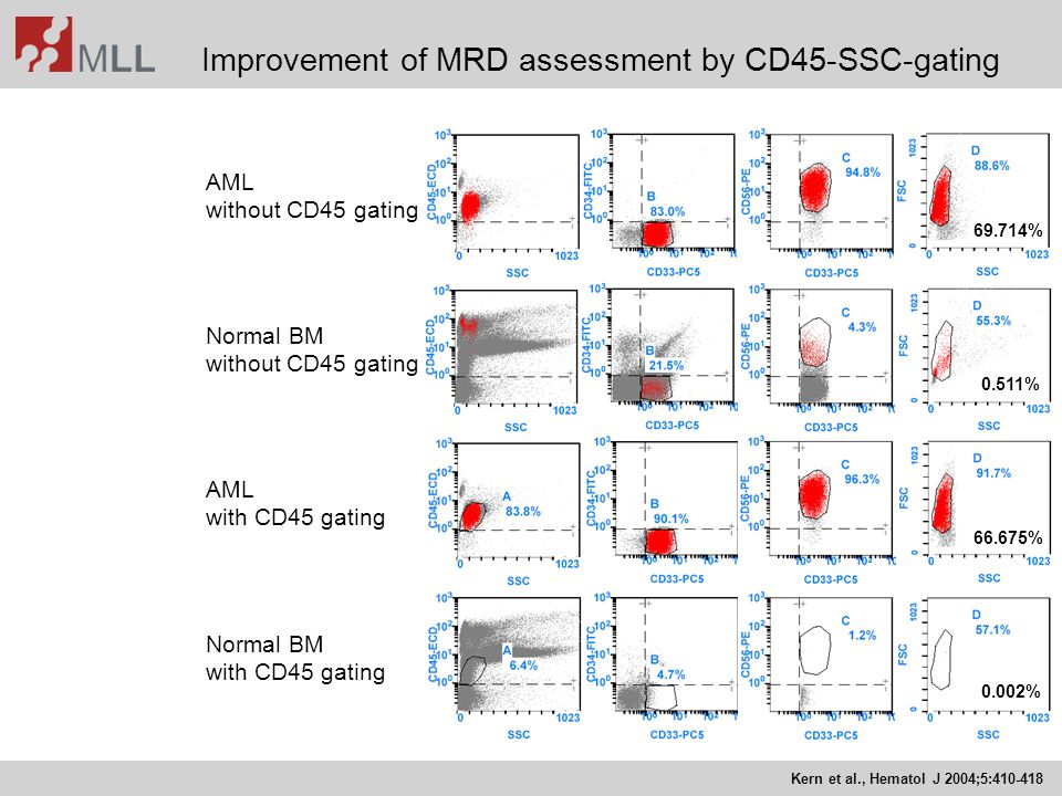 Improvement of MRD assessment by CD45-SSC-gating Kern et al., Hematol J 2004;5:410-418 AML without CD45 gating AML with CD45 gating Normal BM without