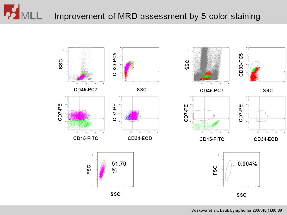 Improvement of MRD assessment by 5-color-staining 51.70 % 0.004% CD45-PC7SSC CD15-FITCCD34-ECD SSC FSC CD7-PE SSC CD33-PC5 CD45-PC7SSC CD15-FITCCD34-E