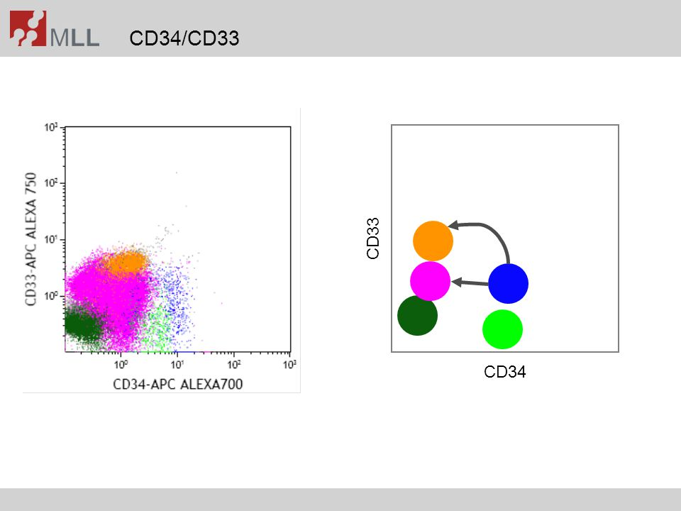 Differential using CD45-SSC-Gate Immunophenotyping 11% blasts Cytomorphology 8% blasts