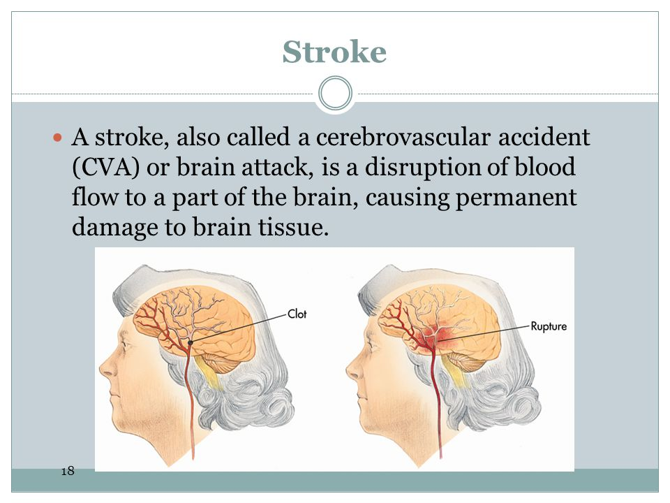 18 Stroke A stroke, also called a cerebrovascular accident (CVA) or brain attack, is a disruption of blood flow to a part of the brain, causing permanent damage to brain tissue.