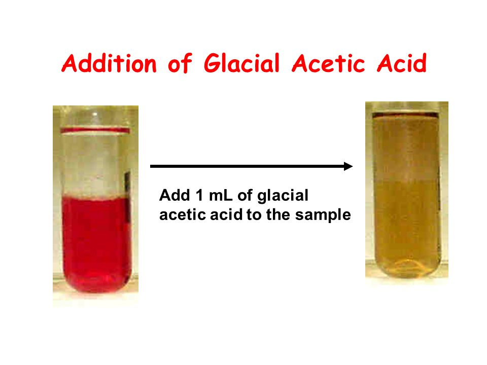 Addition of Glacial Acetic Acid Add 1 mL of glacial acetic acid to the sample