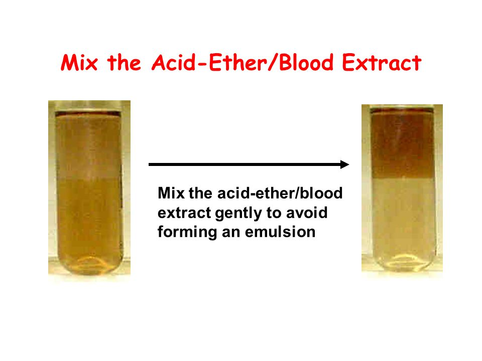 Mix the Acid-Ether/Blood Extract Mix the acid-ether/blood extract gently to avoid forming an emulsion