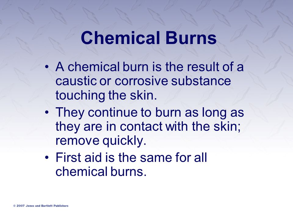 Chemical Burns A chemical burn is the result of a caustic or corrosive substance touching the skin.