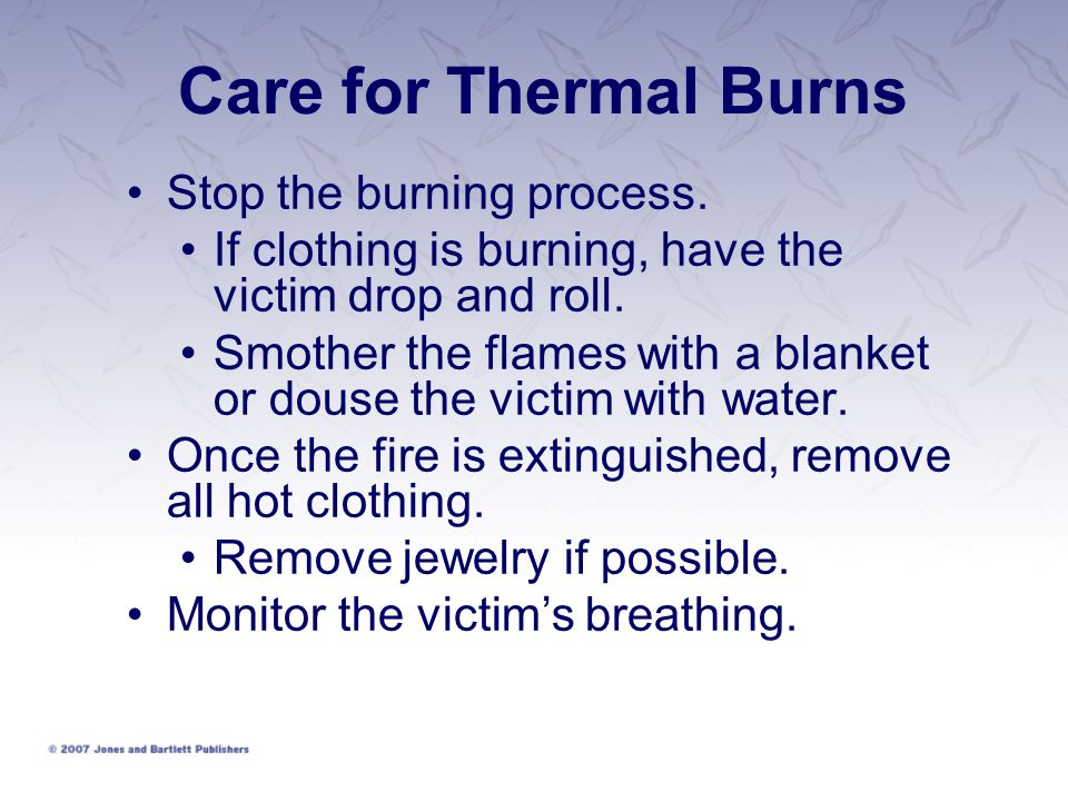 Care for Thermal Burns Stop the burning process.