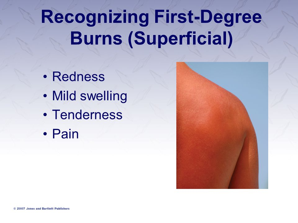 Recognizing First-Degree Burns (Superficial) Redness Mild swelling Tenderness Pain