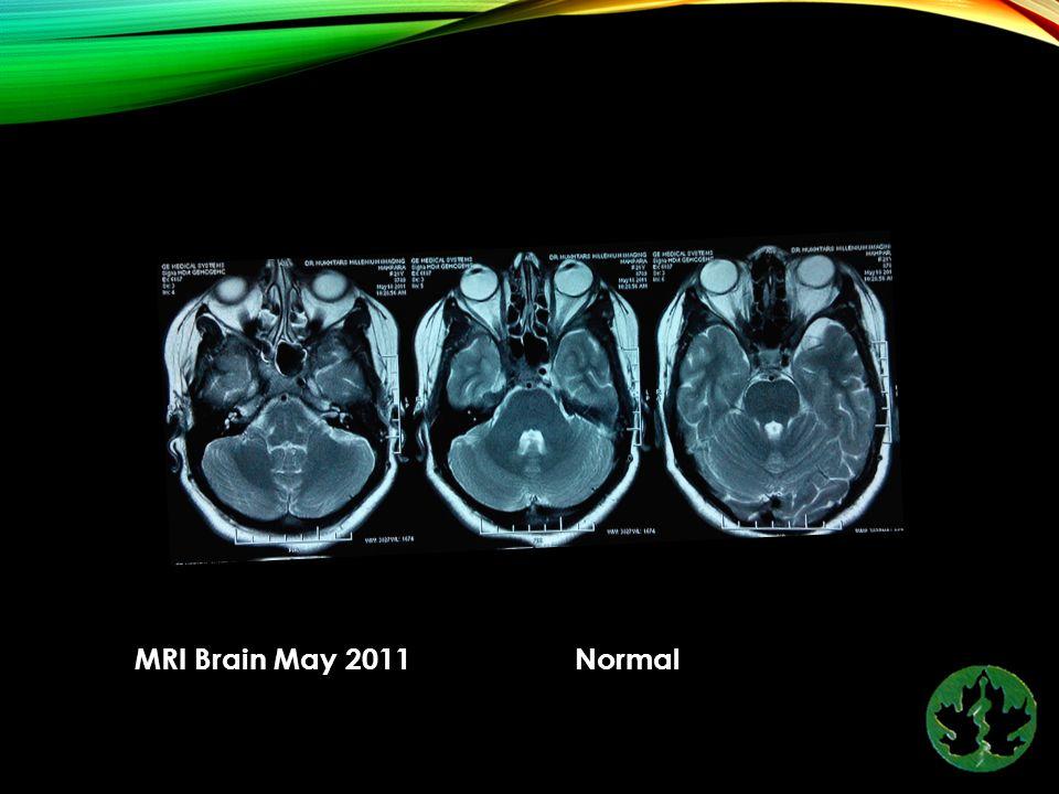 MRI Brain May 2011 Normal