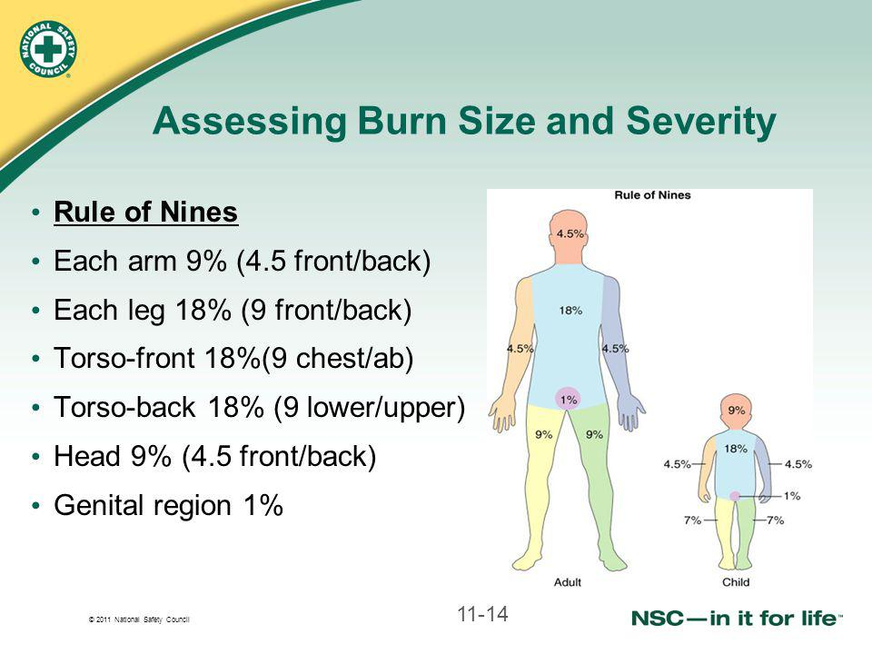 © 2011 National Safety Council Assessing Burn Size and Severity Rule of Nines Each arm 9% (4.5 front/back) Each leg 18% (9 front/back) Torso-front 18%(9 chest/ab) Torso-back 18% (9 lower/upper) Head 9% (4.5 front/back) Genital region 1% 11-14