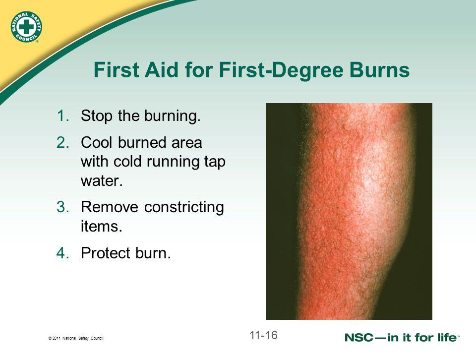 © 2011 National Safety Council First Aid for First-Degree Burns 1.Stop the burning.