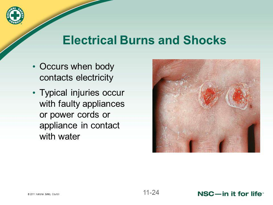 © 2011 National Safety Council Electrical Burns and Shocks Occurs when body contacts electricity Typical injuries occur with faulty appliances or power cords or appliance in contact with water 11-24