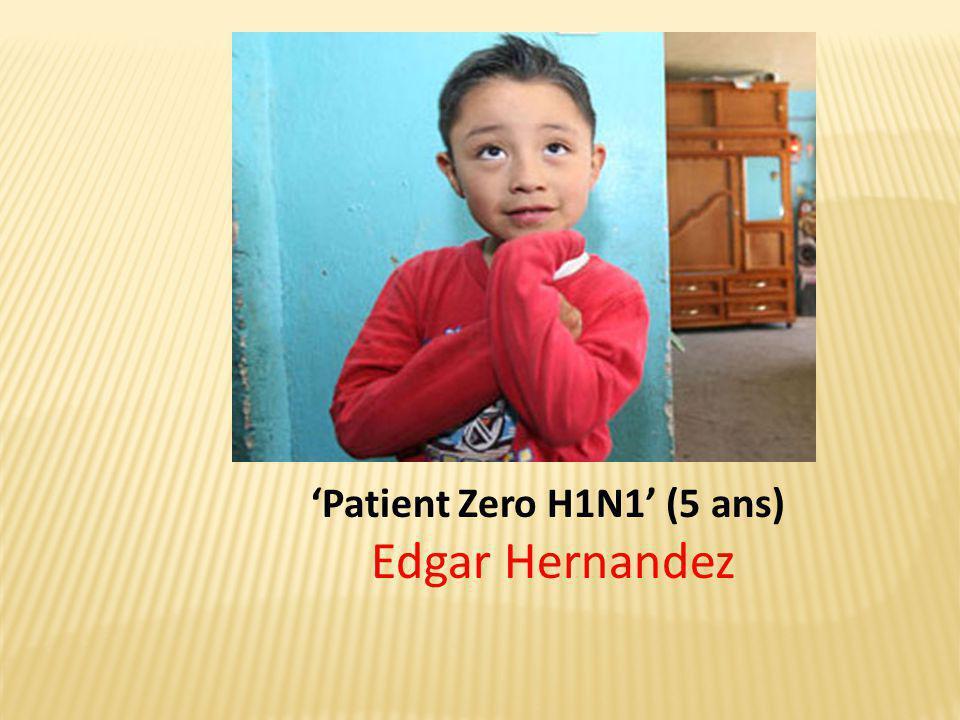 'Patient Zero H1N1' (5 ans) Edgar Hernandez