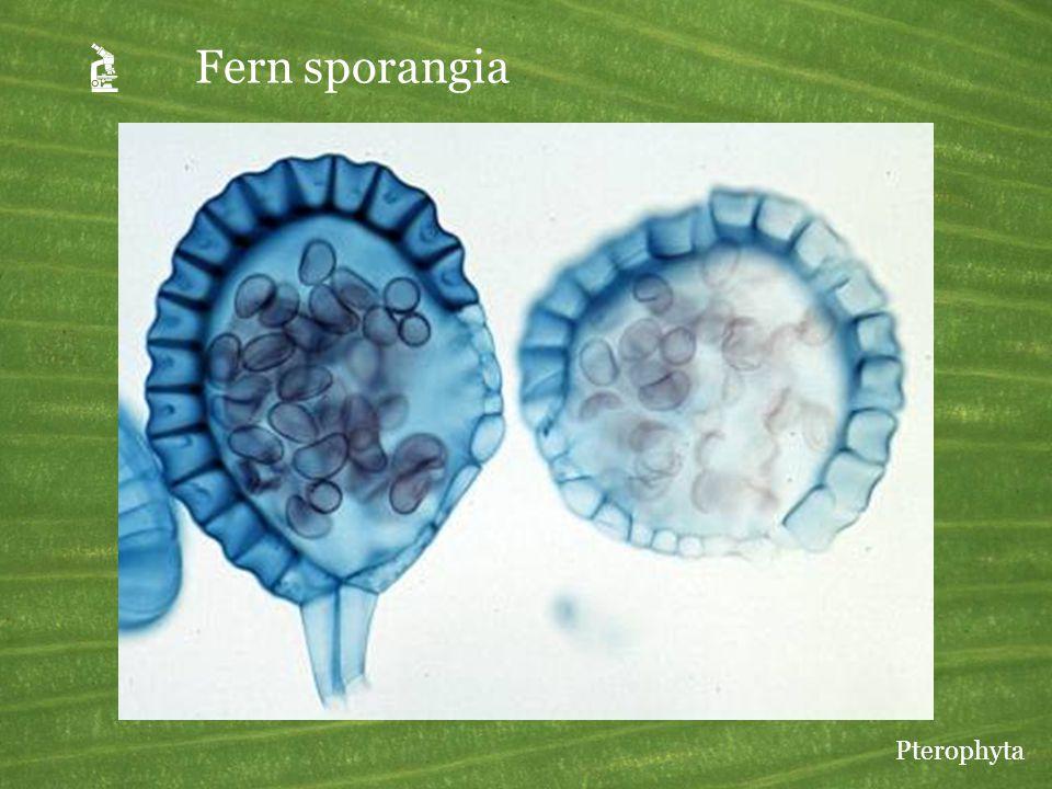  Fern sporangia Pterophyta
