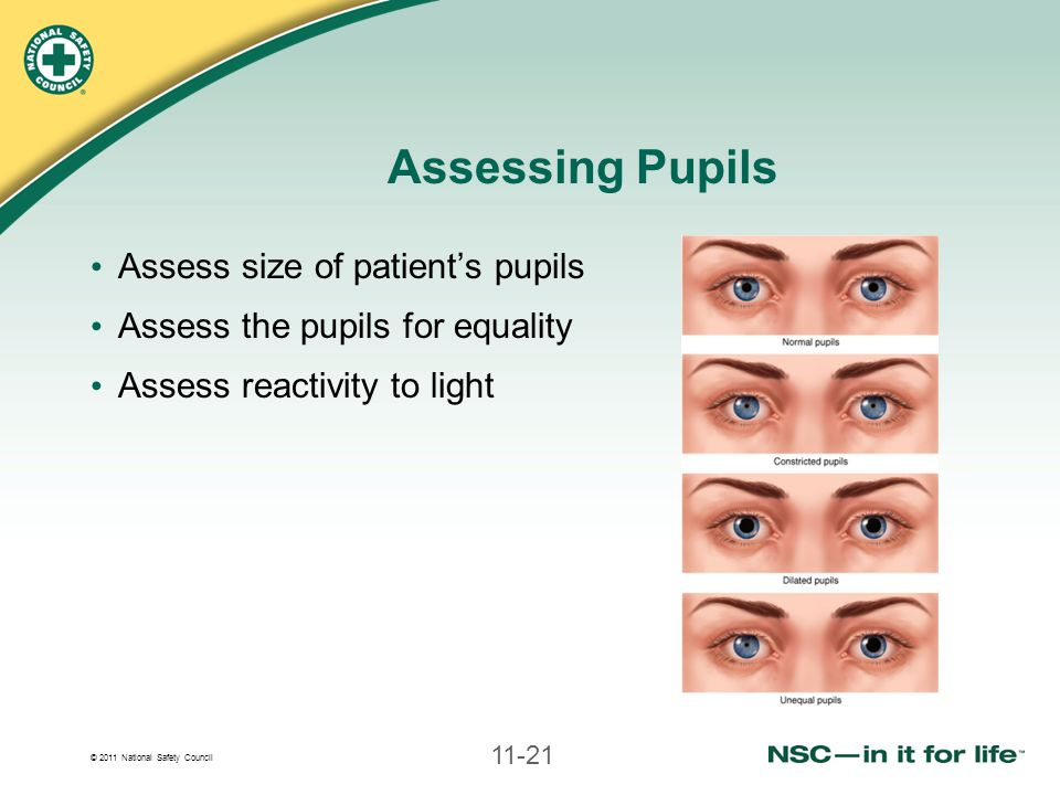 © 2011 National Safety Council 11-21 Assess size of patient's pupils Assess the pupils for equality Assess reactivity to light Assessing Pupils