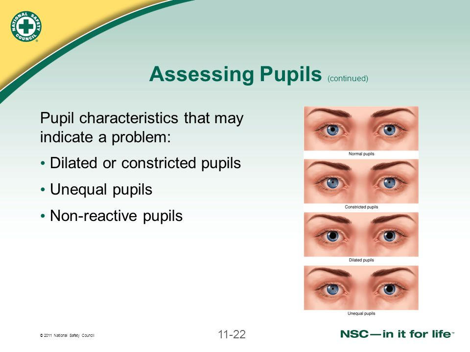 © 2011 National Safety Council 11-22 Assessing Pupils (continued) Pupil characteristics that may indicate a problem: Dilated or constricted pupils Unequal pupils Non-reactive pupils