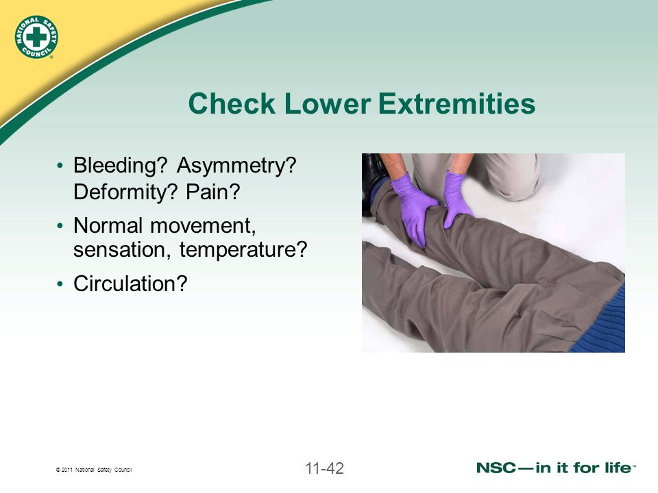 © 2011 National Safety Council 11-42 Check Lower Extremities Bleeding.