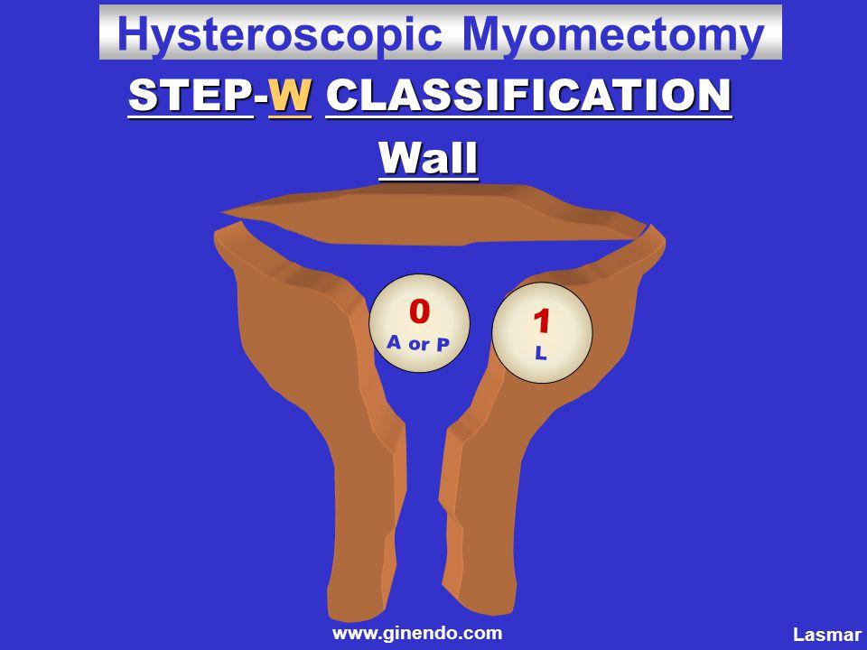 0 A or P 1L1L STEP-W CLASSIFICATION Wall Lasmar www.ginendo.com Hysteroscopic Myomectomy