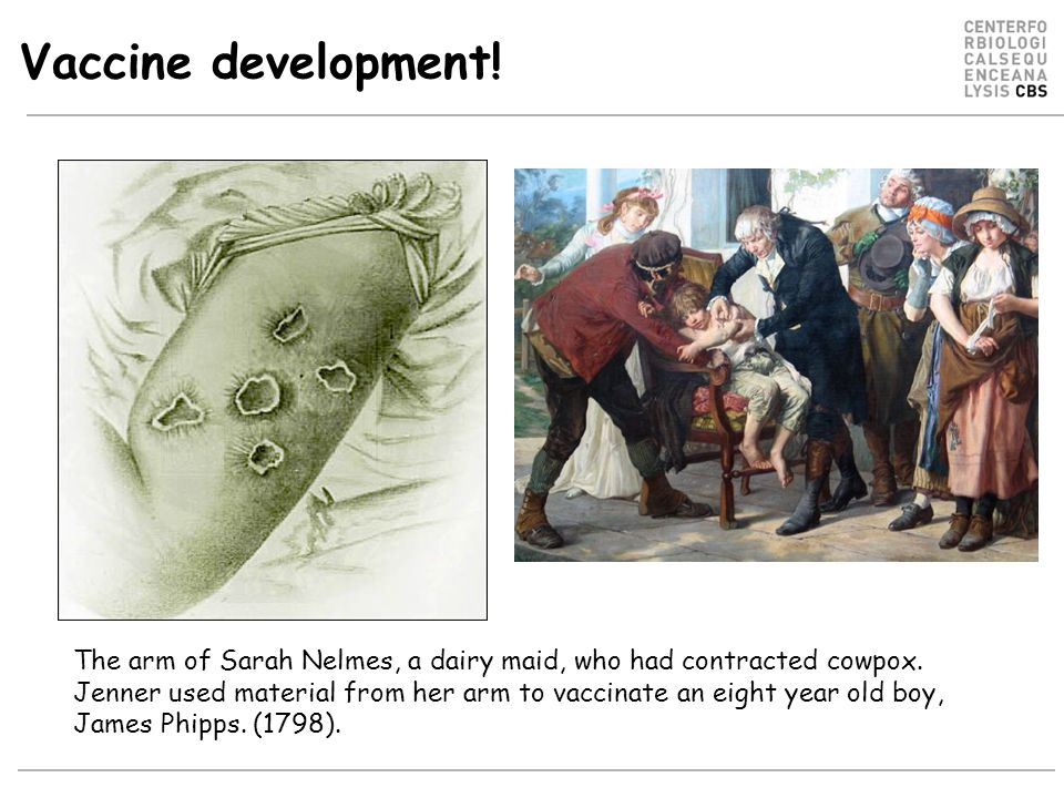 Vaccine development. The arm of Sarah Nelmes, a dairy maid, who had contracted cowpox.