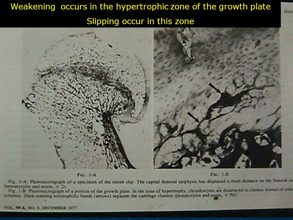 Weakening occurs in the hypertrophic zone of the growth plate Slipping occur in this zone