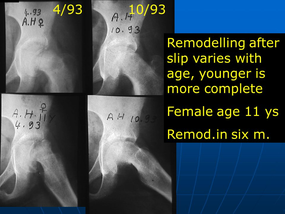 A.H. Remodelling after slip varies with age, younger is more complete Female age 11 ys Remod.in six m. 10/934/93
