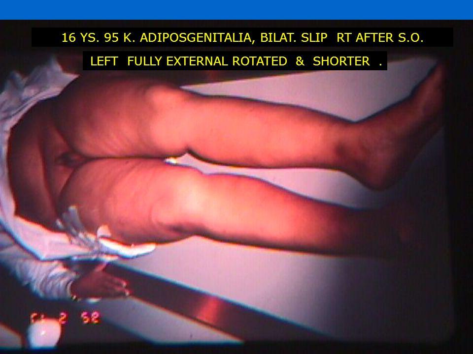 16 YS. 95 K. ADIPOSGENITALIA, BILAT. SLIP RT AFTER S.O. LEFT FULLY EXTERNAL ROTATED & SHORTER.