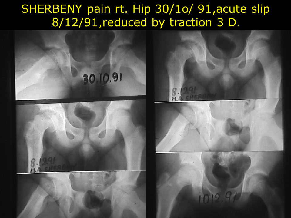 SHERBENY pain rt. Hip 30/1o/ 91,acute slip 8/12/91,reduced by traction 3 D.