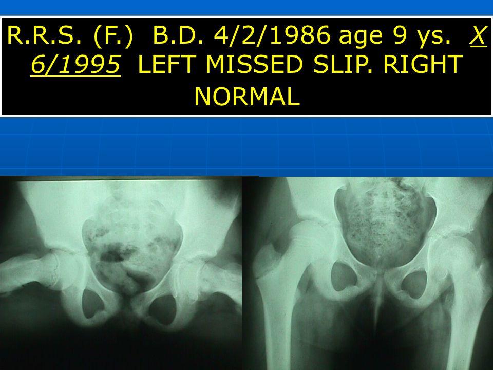 R.R.S. (F.) B.D. 4/2/1986 age 9 ys. X 6/1995 LEFT MISSED SLIP. RIGHT NORMAL