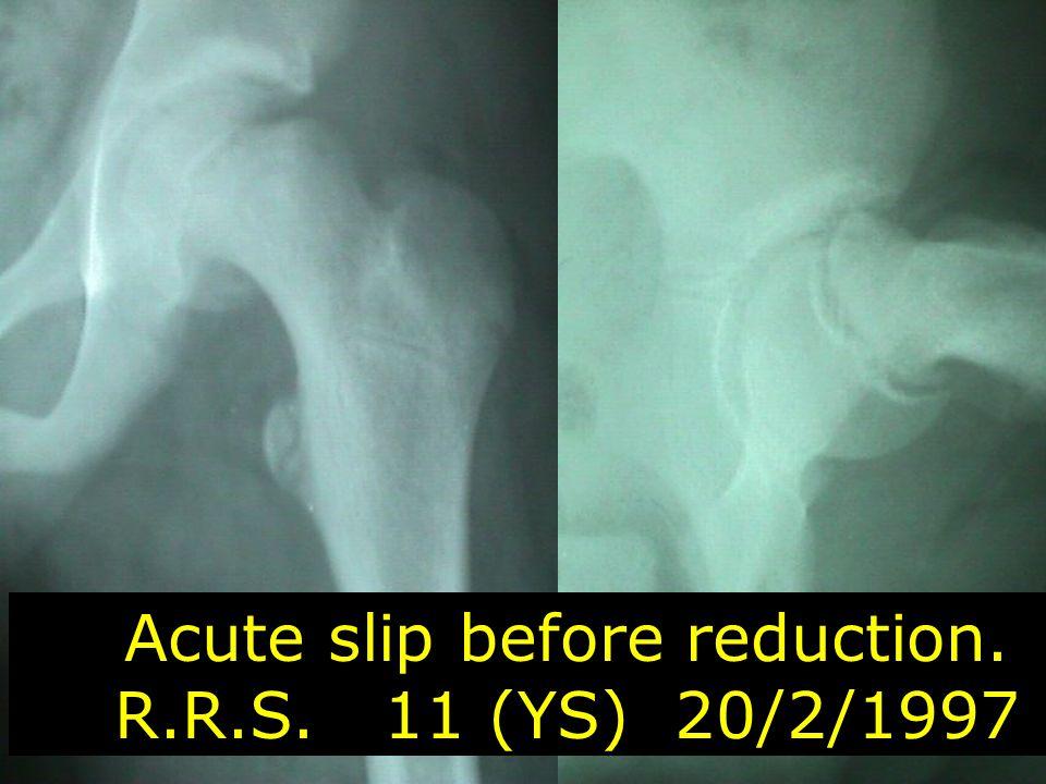 Acute slip before reduction. R.R.S. 11 (YS) 20/2/1997
