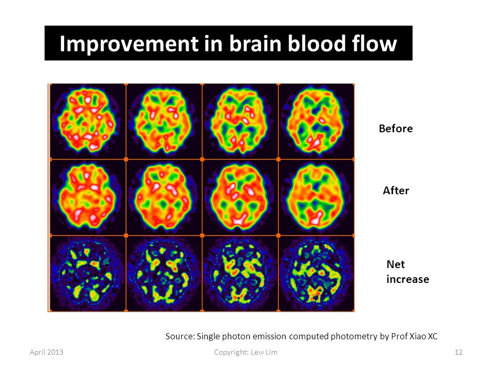April 2013Copyright: Lew Lim12 Before After Net increase Improvement in brain blood flow Source: Single photon emission computed photometry by Prof Xi