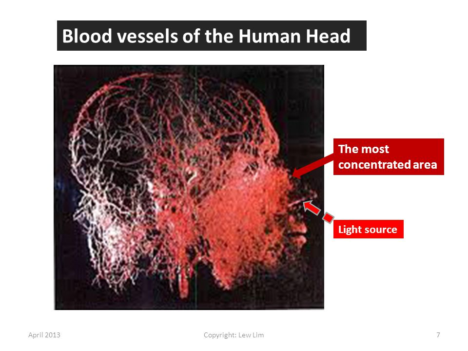 The most concentrated area Blood vessels of the Human Head April 20137Copyright: Lew Lim Light source