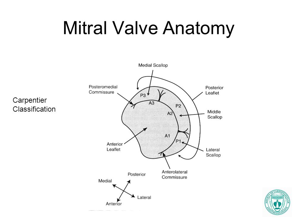 Mitral Valve Anatomy Carpentier Classification