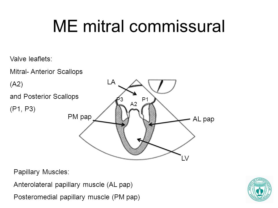 ME mitral commissural LA LV A2 P1 PM pap AL pap Valve leaflets: Mitral- Anterior Scallops (A2) and Posterior Scallops (P1, P3) Papillary Muscles: Ante