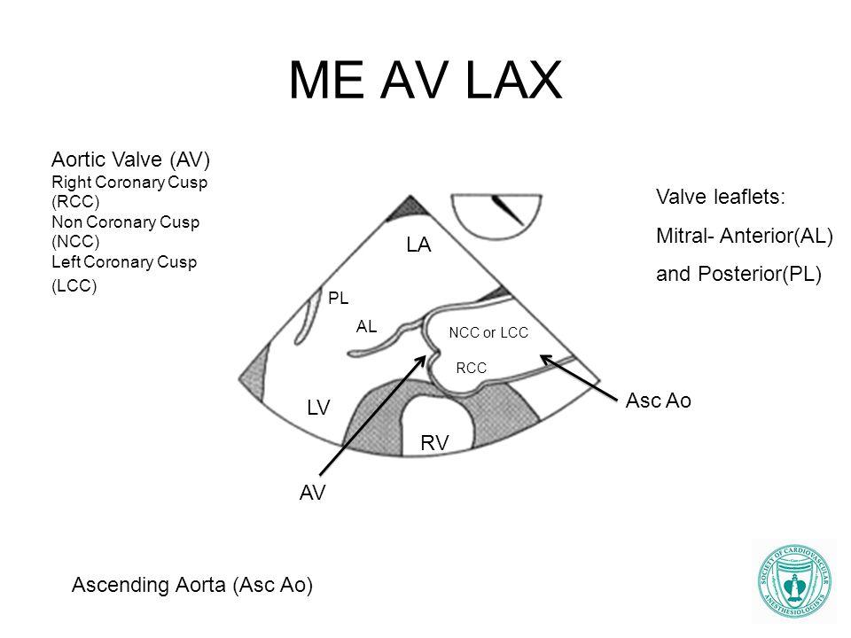 ME AV LAX LA LV PL AL Asc Ao AV Valve leaflets: Mitral- Anterior(AL) and Posterior(PL) Aortic Valve (AV) Right Coronary Cusp (RCC) Non Coronary Cusp (
