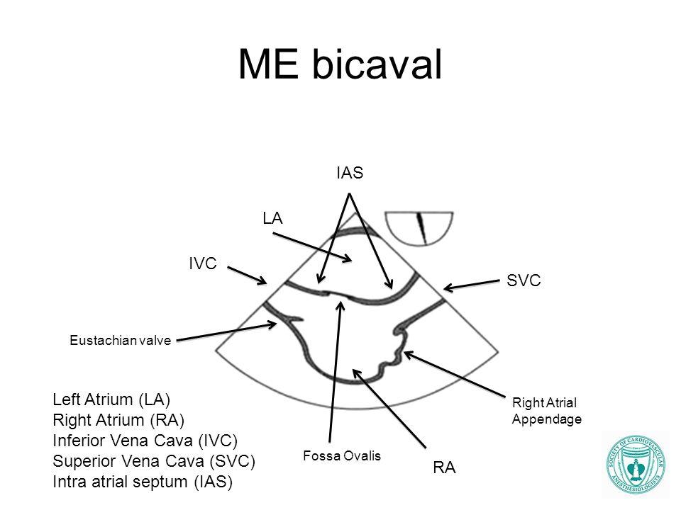 ME bicaval LA RA IAS IVC SVC Left Atrium (LA) Right Atrium (RA) Inferior Vena Cava (IVC) Superior Vena Cava (SVC) Intra atrial septum (IAS) Fossa Oval