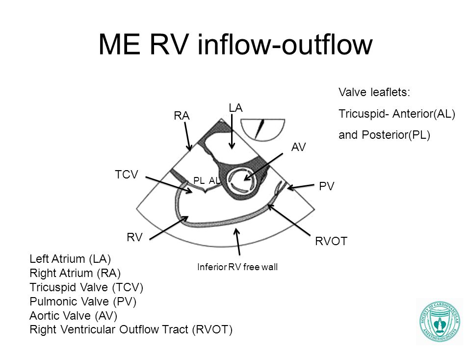 ME RV inflow-outflow LA RA TCV RV PV AV Left Atrium (LA) Right Atrium (RA) Tricuspid Valve (TCV) Pulmonic Valve (PV) Aortic Valve (AV) Right Ventricul