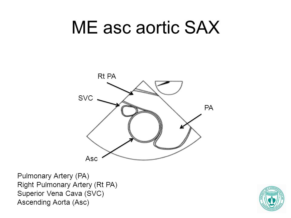 ME asc aortic SAX Rt PA PA SVC Asc Pulmonary Artery (PA) Right Pulmonary Artery (Rt PA) Superior Vena Cava (SVC) Ascending Aorta (Asc)