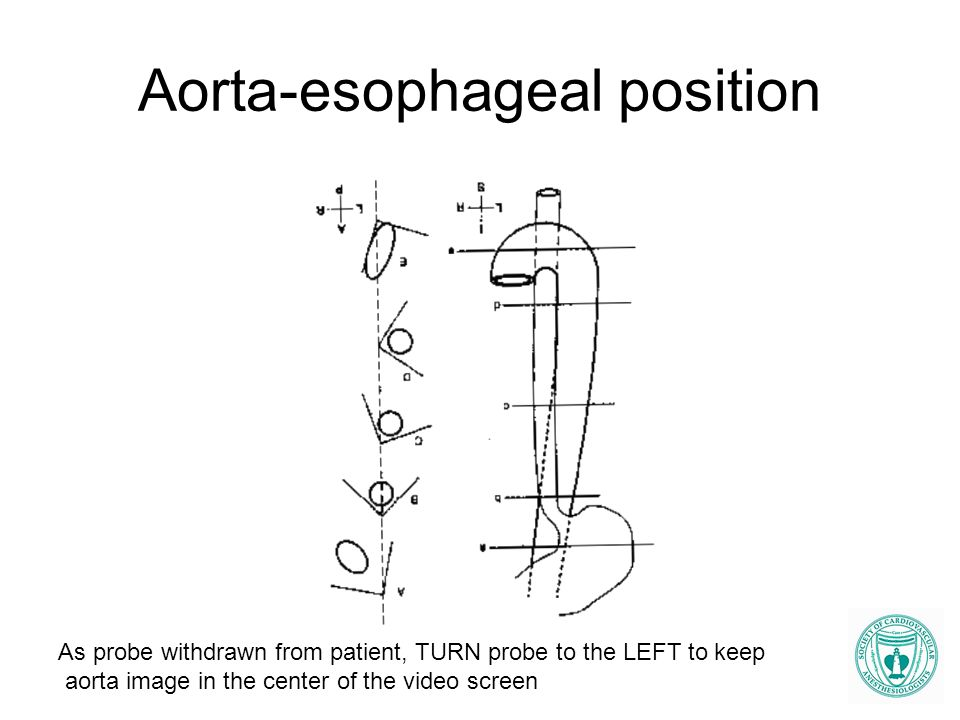 Aorta-esophageal position As probe withdrawn from patient, TURN probe to the LEFT to keep aorta image in the center of the video screen