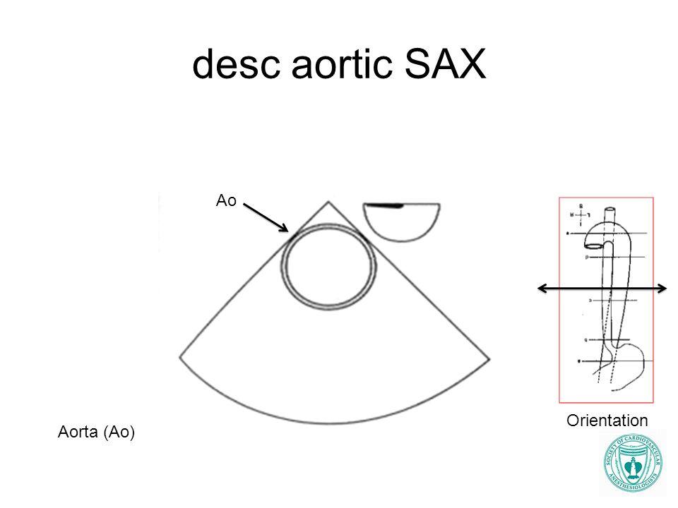 desc aortic SAX Ao Aorta (Ao) Orientation